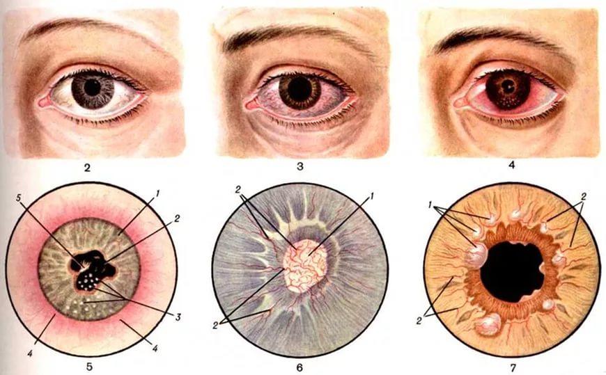 Основные болезни глаз