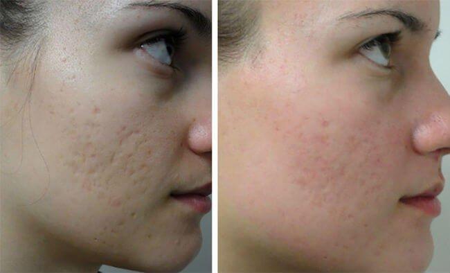 Как ухаживать за кожей лица после лазерной терапии